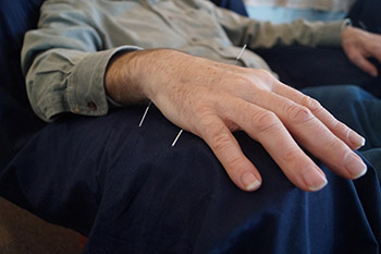 DNF Medical Centers Use Acupuncture as a Holistic Approach for Pain Management