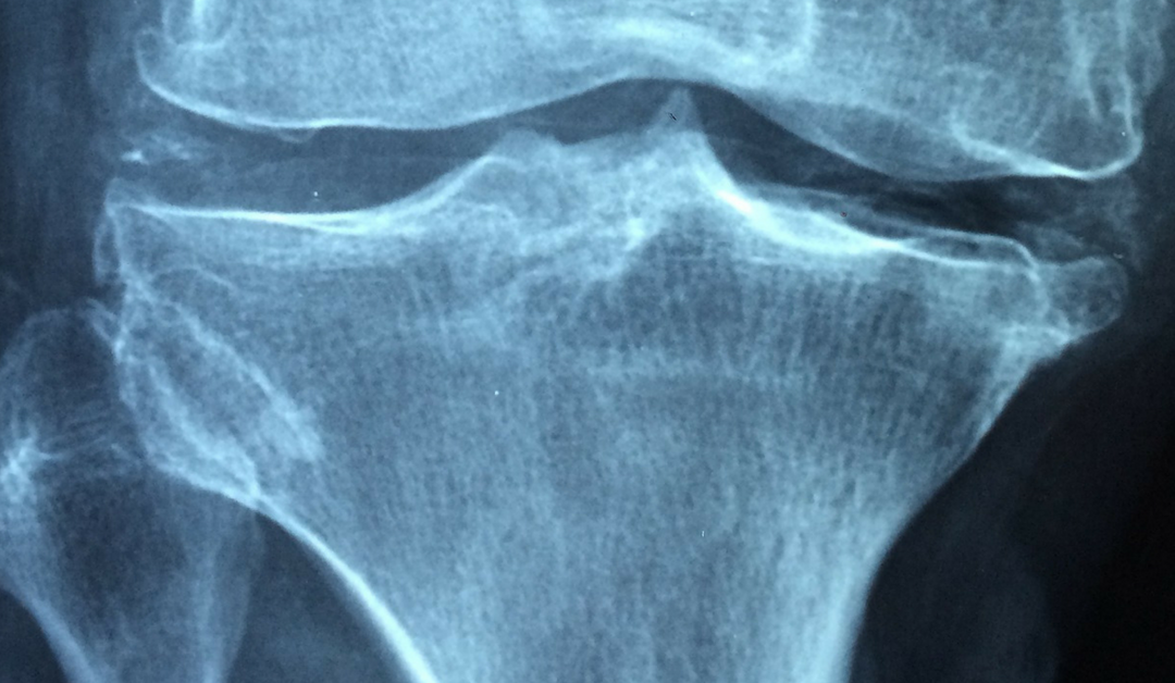 Do Your Physicians Perform Bone Density Checks?